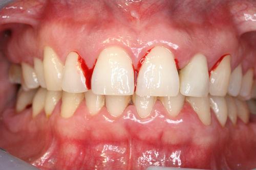 Que es la gingivitis y cuales son sus tratamientos